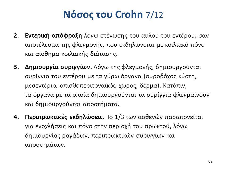 Νόσος του Crohn 7/12 2.Εντερική απόφραξη λόγω στένωσης του αυλού του εντέρου, σαν αποτέλεσμα της φλεγμονής, που εκδηλώνεται με κοιλιακό πόνο και αίσθημα κοιλιακής διάτασης.
