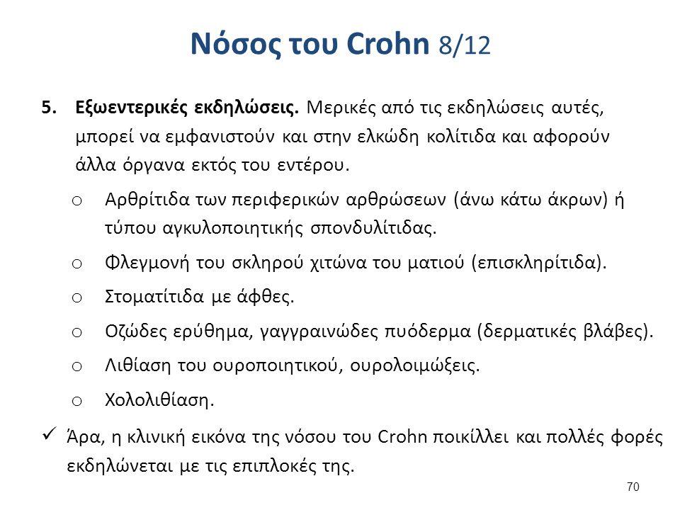 Νόσος του Crohn 8/12 5.Εξωεντερικές εκδηλώσεις.