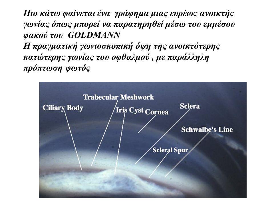 ΠΡΟΣΔΙΟΡΙΣΜΟΣ ΤΗΣ ΤΑΞΙΝΟΜΗΣΗΣ ΤΩΝ ΓΩΝΙΩΝ ΚΑΤΗΓΟΡΙΑ IV: ευρέως ανοικτή γωνία όταν το δοκιδωτό δίκτυο και μια πλατιά ζώνη του ακτινωτού σώματος είναι ορατά (35 - 45 μοίρες) ΚΑΤΗΓΟΡΙΑ III-II :Μέσου ανοίγματος όταν το δοκιδωτό δίκτυο είναι ορατό και το ακτινωτό σώμα είτε δεν φαίνεται καθόλου είτε φαίνεται ως μια στενή ζώνη (20-35 μοίρες) ΚΑΤΗΓΟΡΙΑ II-I : Στενή γωνία όπου μόνο το 1/3 ή και λιγότερο τμήμα του δοκιδωτού δικτύου είναι ορατό (μικρότερη από 20 μοίρες) ΚΑΤΗΓΟΡΙΑ I- O : εξαιρετικά στενή ως και κλειστή γωνία χαρακτηρίζεται όταν είναι ορατή μόνο η γραμμή Schwalbe ή δε φαίνεται καθόλου ούτε αυτή(10 μοίρες ή λιγότερο)