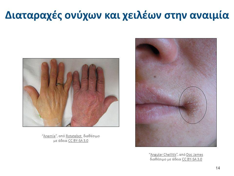 Διαταραχές ονύχων και χειλέων στην αναιμία 14 Anemia , από Rotatebot διαθέσιμο με άδεια CC BY-SA 3.0AnemiaRotatebot CC BY-SA 3.0 Angular Cheilitis , από Doc James διαθέσιμο με άδεια CC BY-SA 3.0Angular CheilitisDoc JamesCC BY-SA 3.0