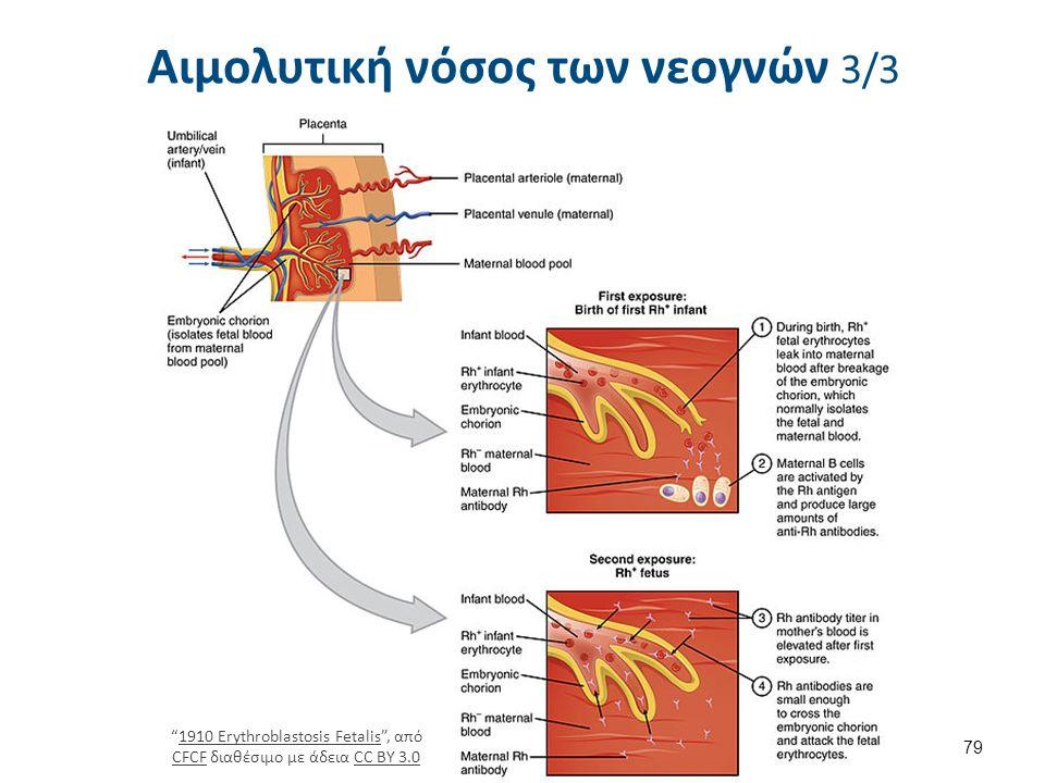 Αιμολυτική νόσος των νεογνών 3/3 79 1910 Erythroblastosis Fetalis , από CFCF διαθέσιμο με άδεια CC BY 3.01910 Erythroblastosis Fetalis CFCFCC BY 3.0