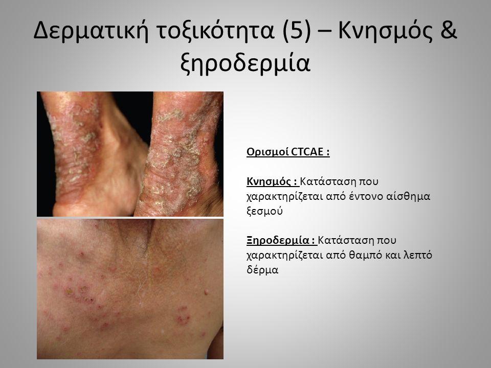 Δερματική τοξικότητα (5) – Κνησμός & ξηροδερμία Ορισμοί CTCAE : Κνησμός : Κατάσταση που χαρακτηρίζεται από έντονο αίσθημα ξεσμού Ξηροδερμία : Κατάσταση που χαρακτηρίζεται από θαμπό και λεπτό δέρμα