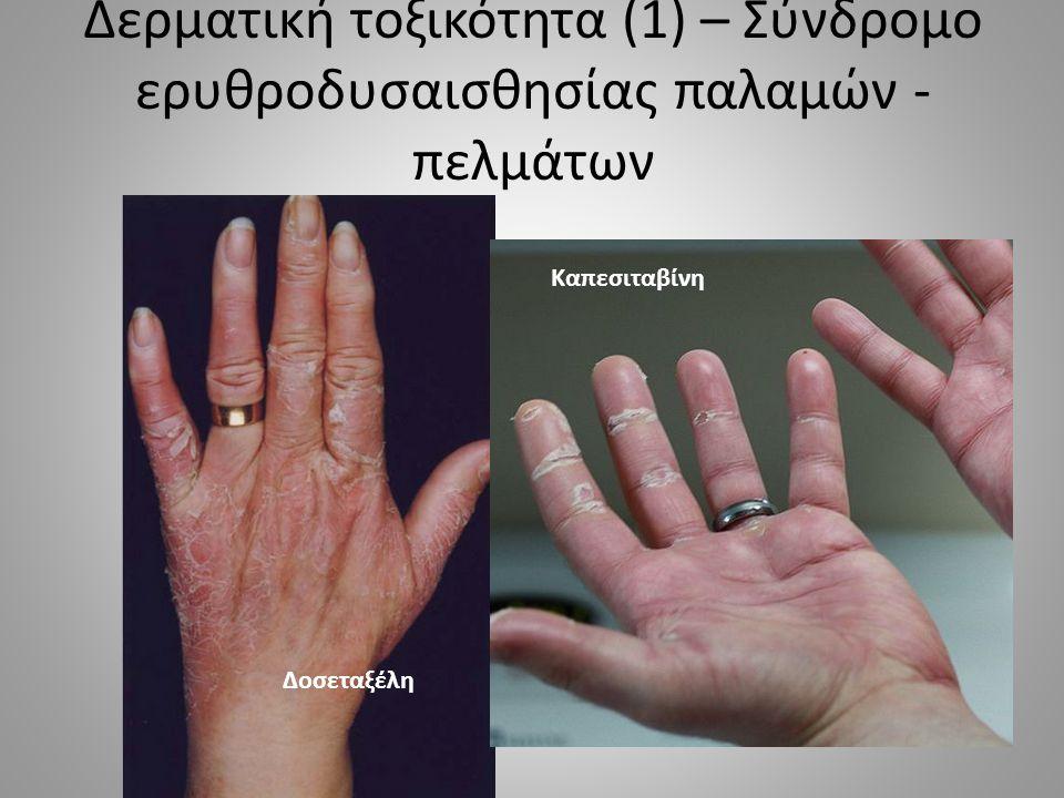 Δερματική τοξικότητα (8) – Κνιδωτικό εξάνθημα ΚΝΙΔΩΣΗ – Αντίδραση υπερευαισθησίας τύπου Ι – Αναπτύσσεται σε λεπτά – ώρες από έναρξη φαρμάκου – Κάθε βλάβη < 24 ώρες – μιτομυκίνη, ταξάνες, προκαρβαζίνη, l- ασπαραγινάση ΟΡΟΝΟΣΙΑ – Κνίδωση + συστηματικά συμπτώματα – 1 -3 εβδομάδες από έναρξη φαρμάκου – σπάνια σε ΧΜΘ (μινοκυκλίνη κτλ) ΚΥΡΙΕΣ ΚΑΤΗΓΟΡΙΕΣ ΚΛΑΣΣΙΚΩΝ ΧΗΜΕΙΟΘΕΡΑΠΕΥΤΙΚΩΝ ΦΑΡΜΑΚΩΝΠΑΡΑΔΕΙΓΜΑΤΑ ΦΑΡΜΑΚΩΝ ΑΛΚΥΛΙΟΥΝΤΕΣ ΠΑΡΑΓΟΝΤΕΣ ΚΥΚΛΟΦΩΣΦΑΜΙΔΗ, ΜΕΛΦΑΛΑΝΗ, ΚΑΡΜΟΥΣΤΙΝΗ, ΔΑΚΑΡΒΑΖΙΝΗ, ΥΔΡΟΞΥΟΥΡΙΑ ΑΝΤΙΜΕΤΑΒΟΛΙΤΕΣ ΜΕΘΟΤΡΕΞΑΤΗ, ΓΕΜΣΙΤΑΒΙΝΗ, ΚΑΠΕΣΙΤΑΒΙΝΗ, ΜΕΡΚΑΠΤΟΠΟΥΡΙΝΗ ΑΝΑΣΤΟΛΕΙΣ ΤΟΠΟΪΣΟΜΕΡΑΣΗΣ ΙΡΙΝΟΤΕΚΑΝΗ, ΔΟΞΟΡΟΥΒΙΚΙΝΗ, ΕΠΙΡΟΥΒΙΚΙΝΗ, ΑΚΤΙΝΟΜΥΚΙΝΗ D ΑΝΑΣΤΟΛΕΙΣ ΜΙΚΡΟΣΩΛΗΝΙΣΚΩΝ ΠΑΚΛΙΤΑΞΕΛΗ, ΔΟΣΕΤΑΞΕΛΗ, ΒΙΝΚΡΙΣΤΙΝΗ, ΒΙΝΜΠΛΑΣΤΙΝΗ ΔΙΑΦΟΡΟΙ ΠΑΡΑΓΟΝΤΕΣΜΠΛΕΟΜΥΚΙΝΗ, ΘΑΛΙΔΟΜΙΔΗ ΤΟΠΙΚΑ ΧΗΜΕΙΟΘΕΡΑΠΕΥΤΙΚΑΚΑΡΜΟΥΣΤΙΝΗ, ΦΘΟΡΙΟΥΡΑΚΙΛΗ 5%