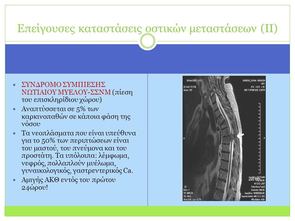 ΣΥΝΔΡΟΜΟ ΣΥΜΠΙΕΣΗΣ ΝΩΤΙΑΙΟΥ ΜΥΕΛΟΥ-ΣΣΝΜ (πίεση του επισκληρίδιου χώρου) Αναπτύσσεται σε 5% των καρκινοπαθών σε κάποια φάση της νόσου Τα νεοπλάσματα που είναι υπεύθυνα για το 50% των περιπτώσεων είναι του μαστού, του πνεύμονα και του προστάτη.