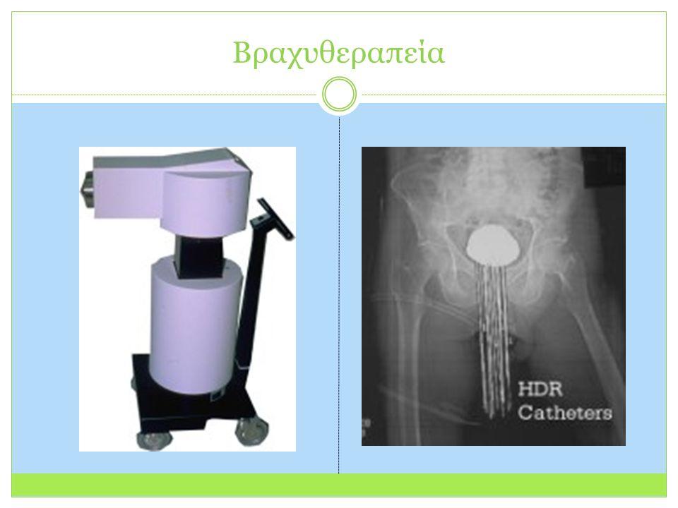 Βραχυθεραπεία