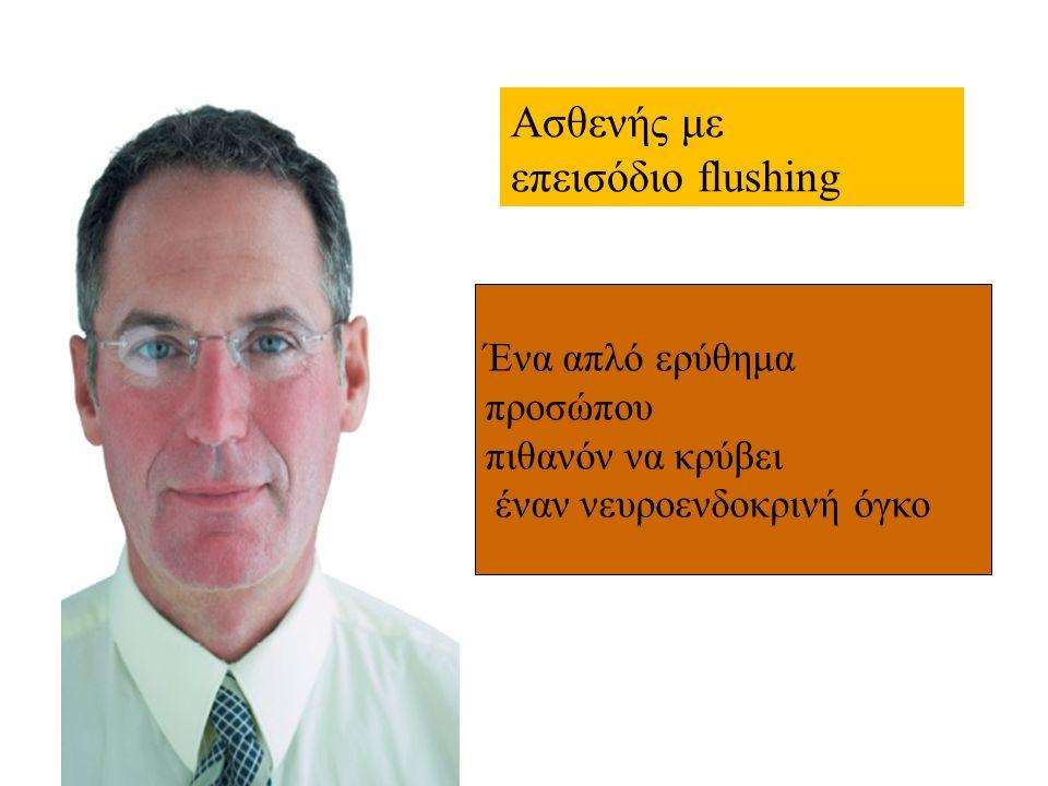 Ασθενής με επεισόδιο flushing Ένα απλό ερύθημα προσώπου πιθανόν να κρύβει έναν νευροενδοκρινή όγκο