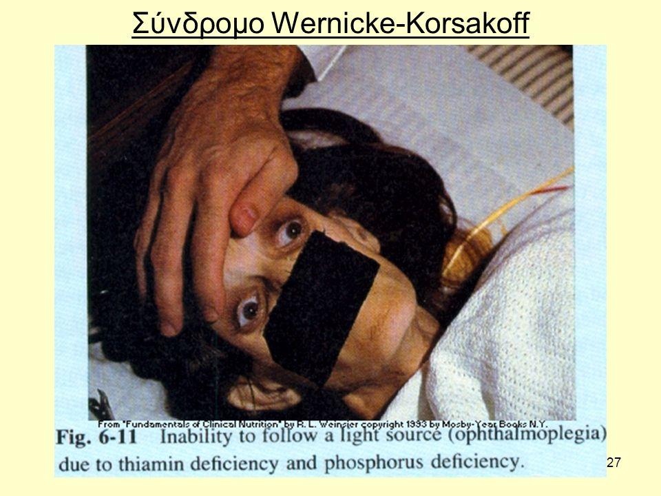 27 Σύνδροµο Wernicke-Korsakoff
