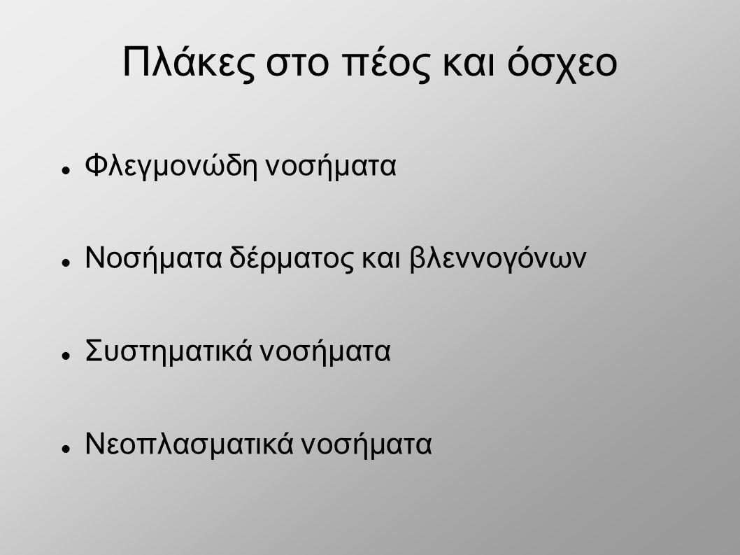 Νόσος Αδαμαντιάδη - Behcet
