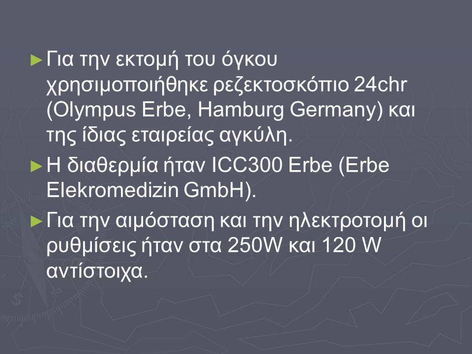 ► ► Για την εκτομή του όγκου χρησιμοποιήθηκε ρεζεκτοσκόπιο 24chr (Olympus Erbe, Hamburg Germany) και της ίδιας εταιρείας αγκύλη. ► ► Η διαθερμία ήταν