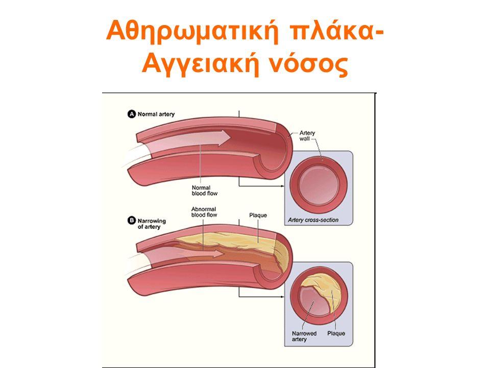 ΥΠΕΡΛΙΠΙΔΑΙΜΙΑ Πως μεταφέρεται το λίπος στο αίμα.