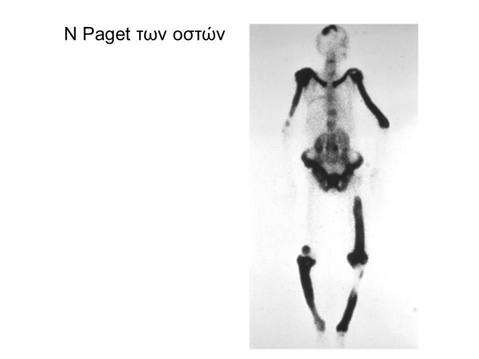 Ν Paget των οστών
