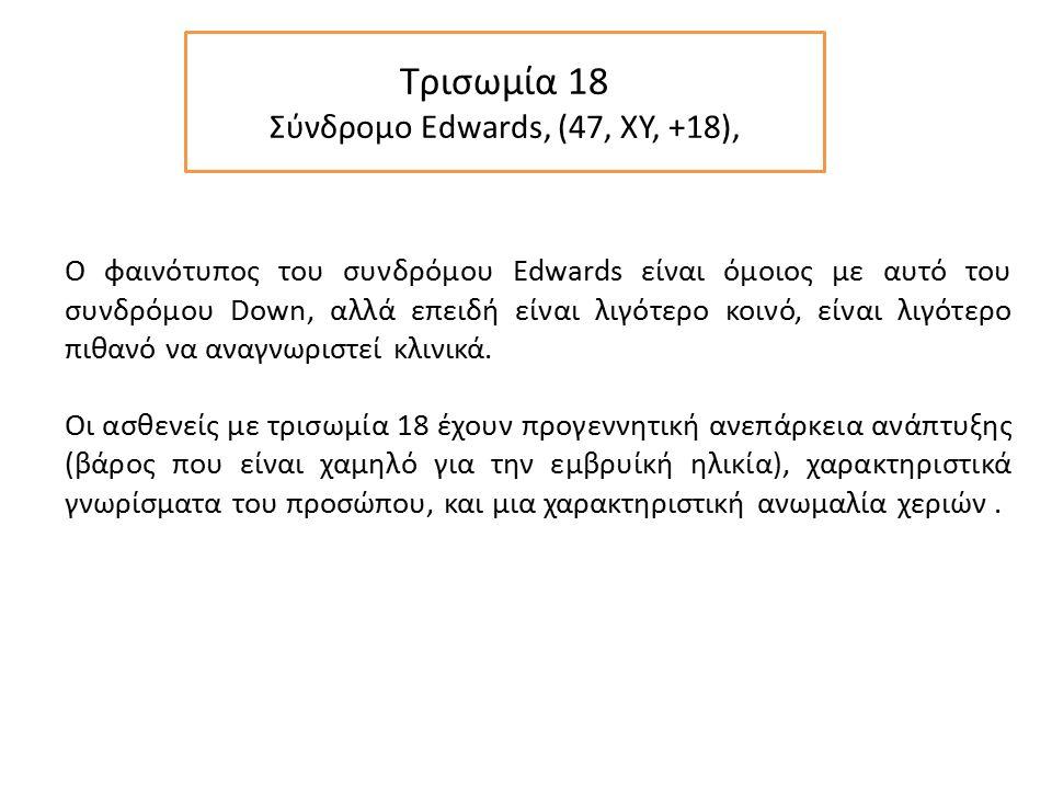 Τρισωμία 18 Σύνδρομο Edwards, (47, XY, +18), Ο φαινότυπος του συνδρόμου Edwards είναι όμοιος με αυτό του συνδρόμου Down, αλλά επειδή είναι λιγότερο κοινό, είναι λιγότερο πιθανό να αναγνωριστεί κλινικά.