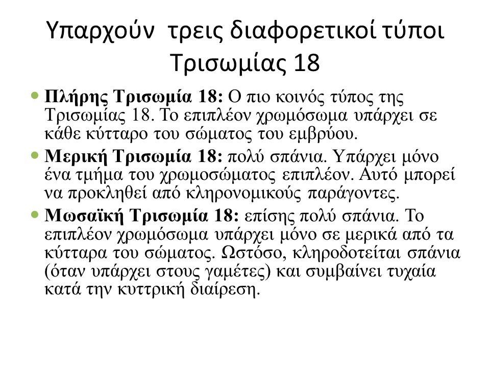 Υπαρχούν τρεις διαφορετικοί τύποι Τρισωμίας 18 Πλήρης Τρισωμία 18: Ο πιο κοινός τύπος της Τρισωμίας 18.