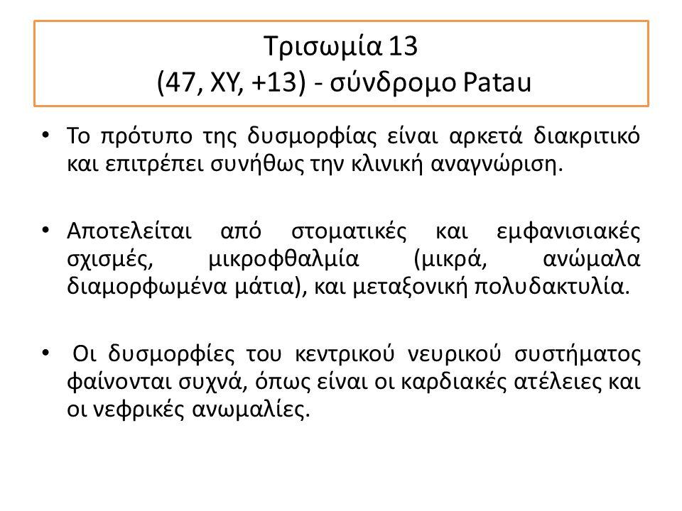 Τρισωμία 13 (47, XY, +13) - σύνδρομο Patau Το πρότυπο της δυσμορφίας είναι αρκετά διακριτικό και επιτρέπει συνήθως την κλινική αναγνώριση.