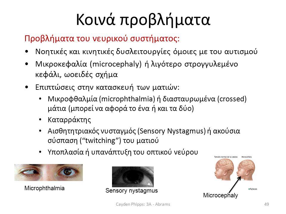 Κοινά προβλήματα Προβλήματα του νευρικού συστήματος: Νοητικές και κινητικές δυσλειτουργίες όμοιες με του αυτισμού Μικροκεφαλία (microcephaly) ή λιγότερο στρογγυλεμένο κεφάλι, ωοειδές σχήμα Επιπτώσεις στην κατασκευή των ματιών: Μικροφθαλμία (microphthalmia) ή διασταυρωμένα (crossed) μάτια (μπορεί να αφορά το ένα ή και τα δύο) Καταρράκτης Αισθητητριακός νυσταγμός (Sensory Nystagmus) ή ακούσια σύσπαση ( twitching ) του ματιού Υποπλασία ή υπανάπτυξη του οπτικού νεύρου Cayden Phipps: 3A - Abrams49 Sensory nystagmus Microphthalmia Microcephaly