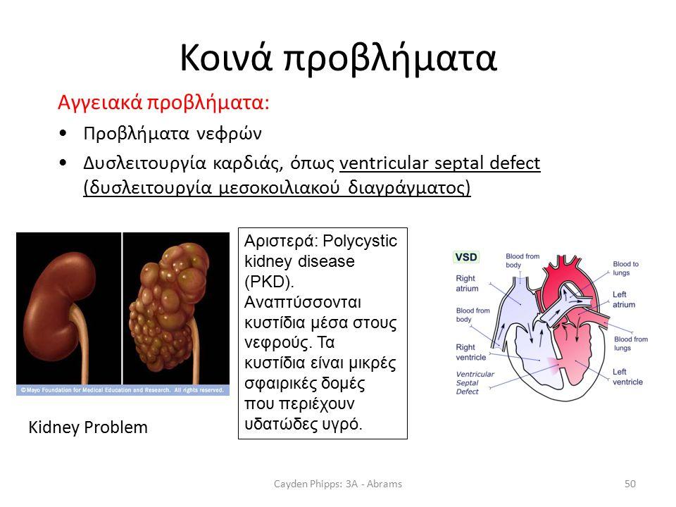 Κοινά προβλήματα Αγγειακά προβλήματα: Προβλήματα νεφρών Δυσλειτουργία καρδιάς, όπως ventricular septal defect (δυσλειτουργία μεσοκοιλιακού διαγράγματος) Cayden Phipps: 3A - Abrams50 Kidney Problem Αριστερά: Polycystic kidney disease (PKD).