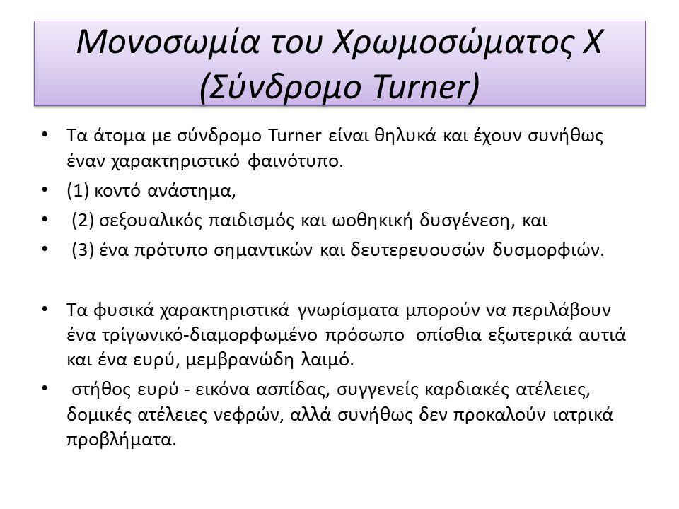 Μονοσωμία του Χρωμοσώματος Χ (Σύνδρομο Turner) Τα άτομα με σύνδρομο Turner είναι θηλυκά και έχουν συνήθως έναν χαρακτηριστικό φαινότυπο.