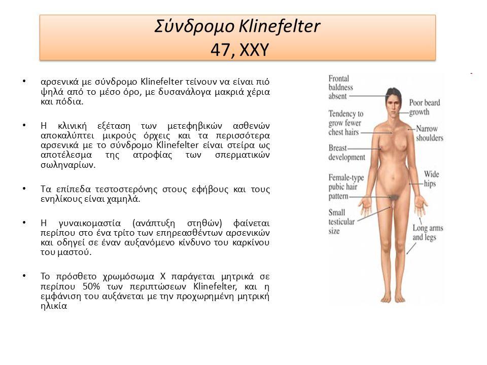 Σύνδρομο Klinefelter 47, XXY αρσενικά με σύνδρομο Klinefelter τείνουν να είναι πιό ψηλά από το μέσο όρο, με δυσανάλογα μακριά χέρια και πόδια.