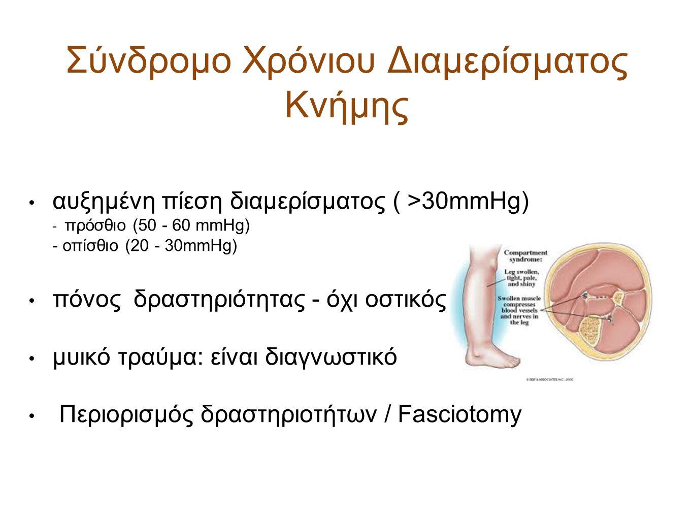 Σύνδρομο Χρόνιου Διαμερίσματος Κνήμης αυξημένη πίεση διαμερίσματος ( >30mmHg) - πρόσθιο (50 - 60 mmHg) - οπίσθιο (20 - 30mmHg) πόνος δραστηριότητας -