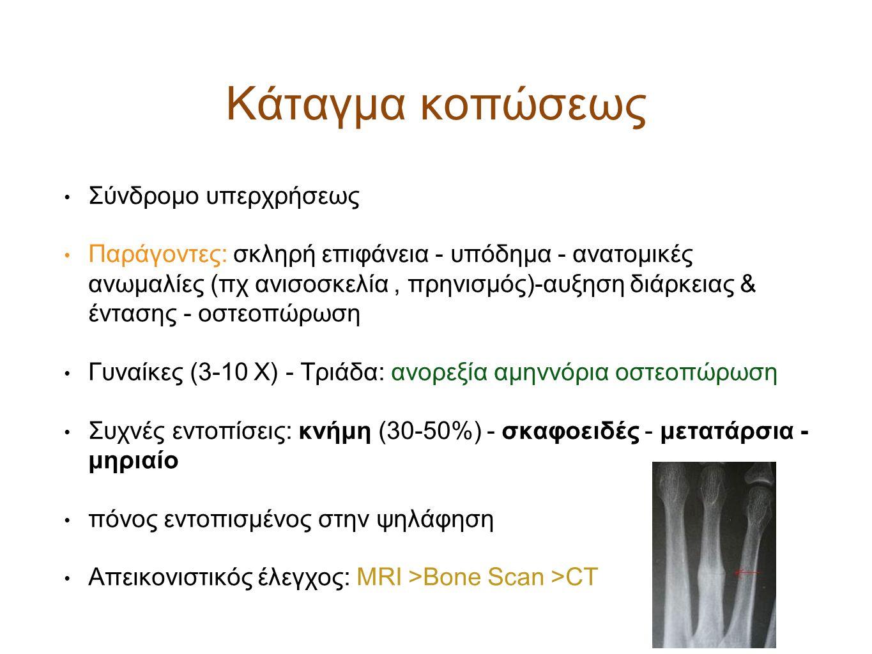 Κάταγμα κοπώσεως Σύνδρομο υπερχρήσεως Παράγοντες: σκληρή επιφάνεια - υπόδημα - ανατομικές ανωμαλίες (πχ ανισοσκελία, πρηνισμός)-αυξηση διάρκειας & έντ