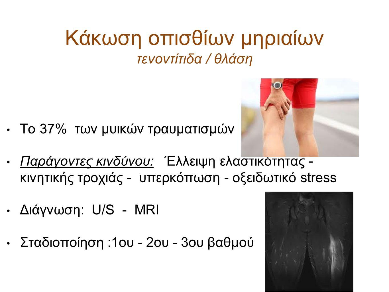 Κάκωση οπισθίων μηριαίων τενοντίτιδα / θλάση Το 37% των μυικών τραυματισμών Παράγοντες κινδύνου: Έλλειψη ελαστικότητας - κινητικής τροχιάς - υπερκόπωσ