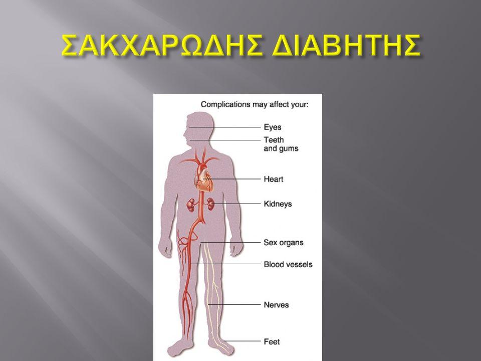  Σακχαρώδης διαβήτης τύπου 1  Ορίζεται το μεταβολικό σύνδρομο το οποίο χαρακτηρίζεται από αυτοάνοση καταστροφή των β - κυττάρων του παγκρέατος με αποτέλεσμα την πλήρη έλλειψη ή την ελάχιστη έκκριση ινσουλίνης  Υπολογίζεται ότι όταν εκδηλωθεί η νόσος έχει ήδη καταστραφεί περίπου το 90% των β - κυττάρων.