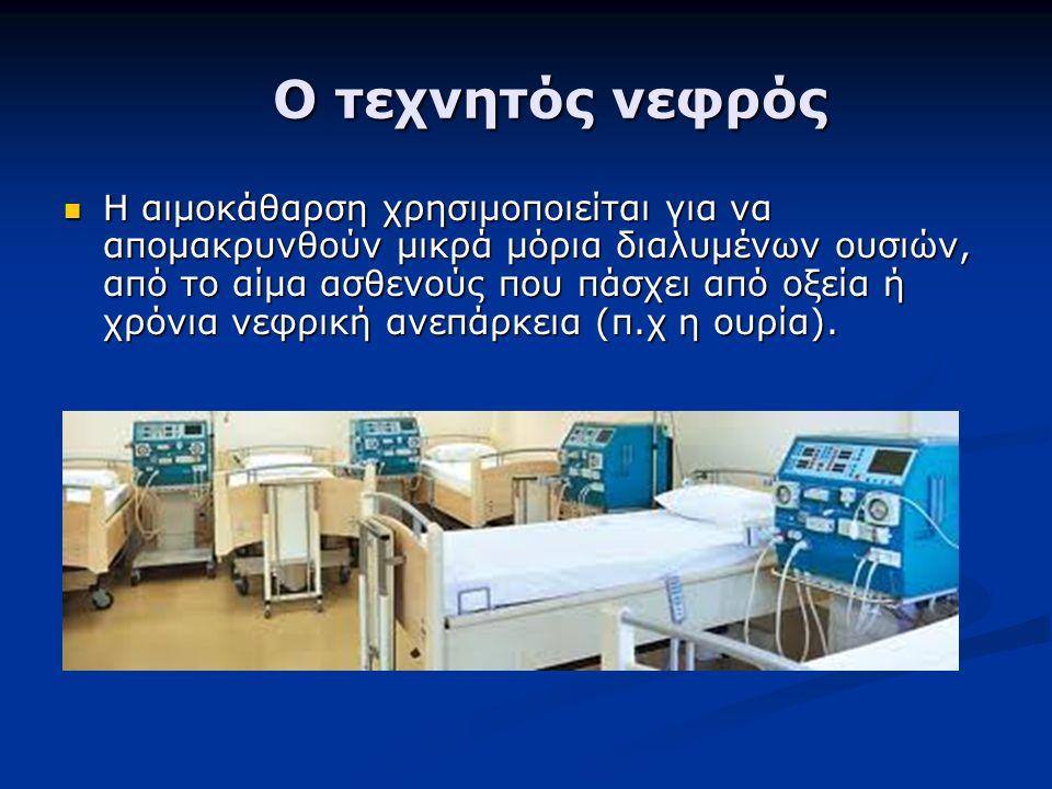 Ο τεχνητός νεφρός Ο τεχνητός νεφρός Η αιμοκάθαρση χρησιμοποιείται για να απομακρυνθούν μικρά μόρια διαλυμένων ουσιών, από το αίμα ασθενούς που πάσχει από οξεία ή χρόνια νεφρική ανεπάρκεια (π.χ η ουρία).