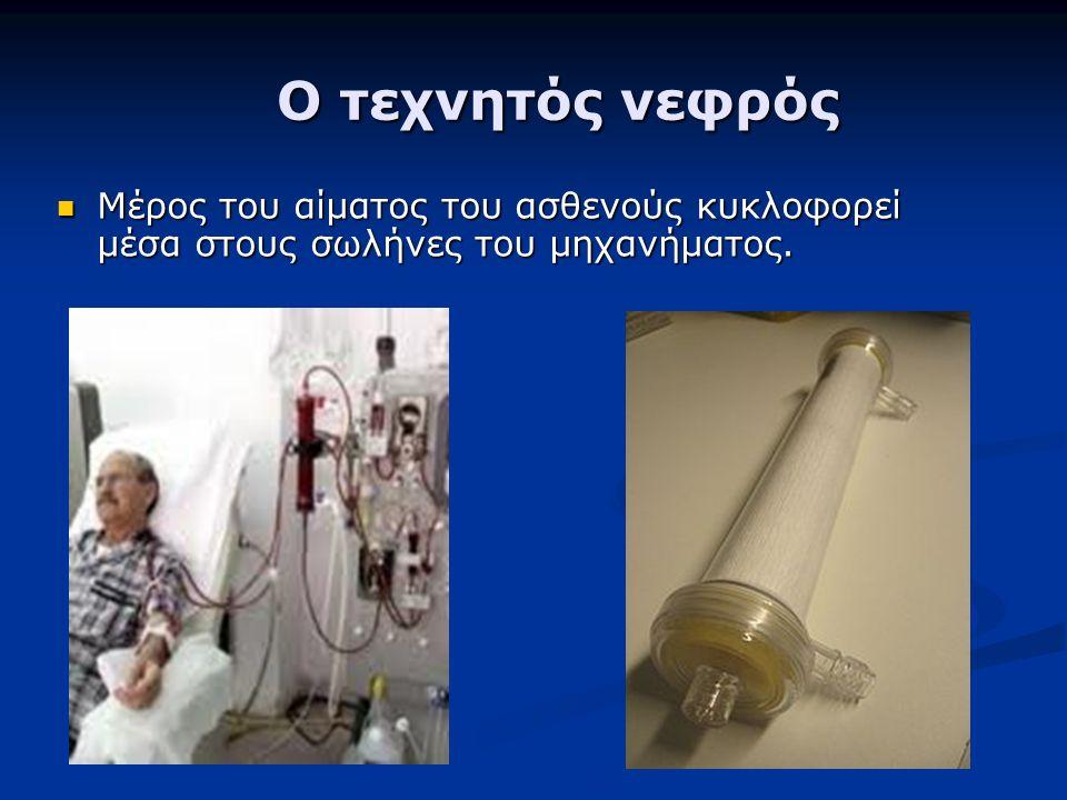 Ο τεχνητός νεφρός Ο τεχνητός νεφρός Μέρος του αίματος του ασθενούς κυκλοφορεί μέσα στους σωλήνες του μηχανήματος. Μέρος του αίματος του ασθενούς κυκλο