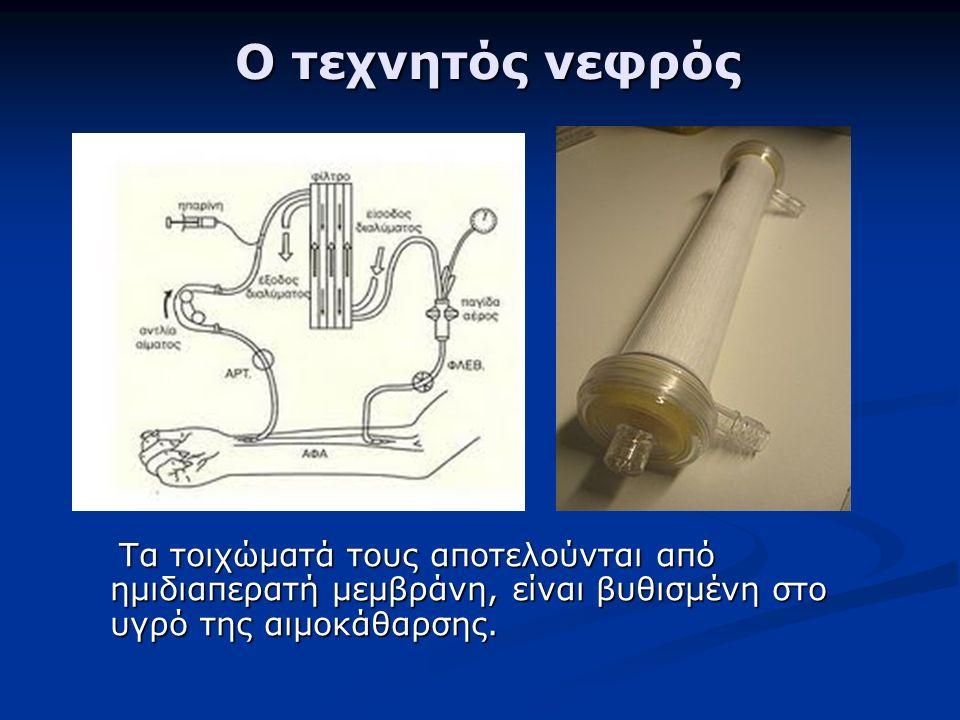 Ο τεχνητός νεφρός Ο τεχνητός νεφρός Τα τοιχώματά τους αποτελούνται από ημιδιαπερατή μεμβράνη, είναι βυθισμένη στο υγρό της αιμοκάθαρσης.