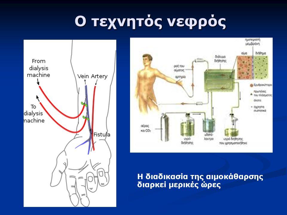 Ο τεχνητός νεφρός Ο τεχνητός νεφρός Η διαδικασία της αιμοκάθαρσης διαρκεί μερικές ώρες