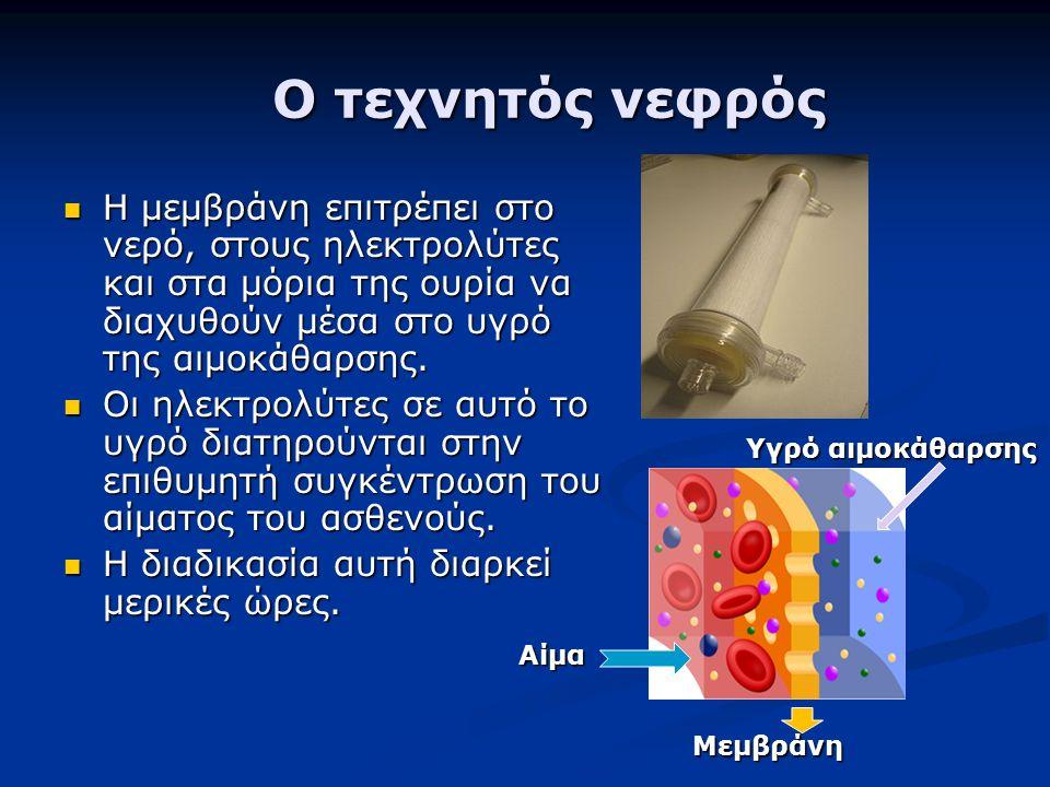 Ο τεχνητός νεφρός Ο τεχνητός νεφρός Η μεμβράνη επιτρέπει στο νερό, στους ηλεκτρολύτες και στα μόρια της ουρία να διαχυθούν μέσα στο υγρό της αιμοκάθαρσης.