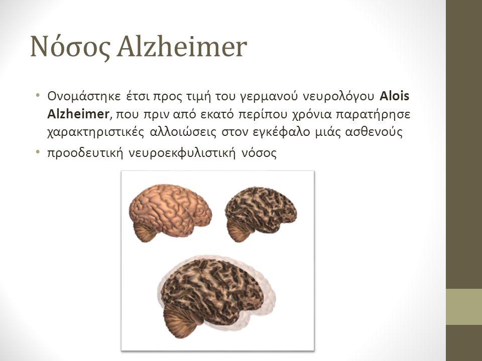 Νόσος Αlzheimer Ονομάστηκε έτσι προς τιμή του γερμανού νευρολόγου Alois Alzheimer, που πριν από εκατό περίπου χρόνια παρατήρησε χαρακτηριστικές αλλοιώσεις στον εγκέφαλο μιάς ασθενούς προοδευτική νευροεκφυλιστική νόσος