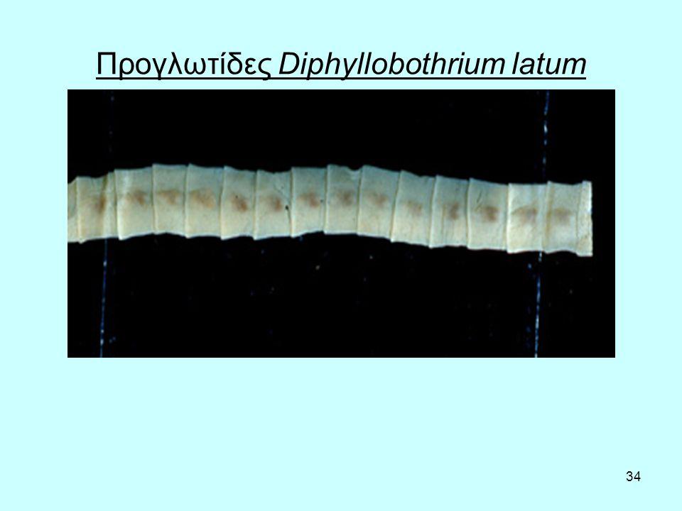 34 Προγλωτίδες Diphyllobothrium latum