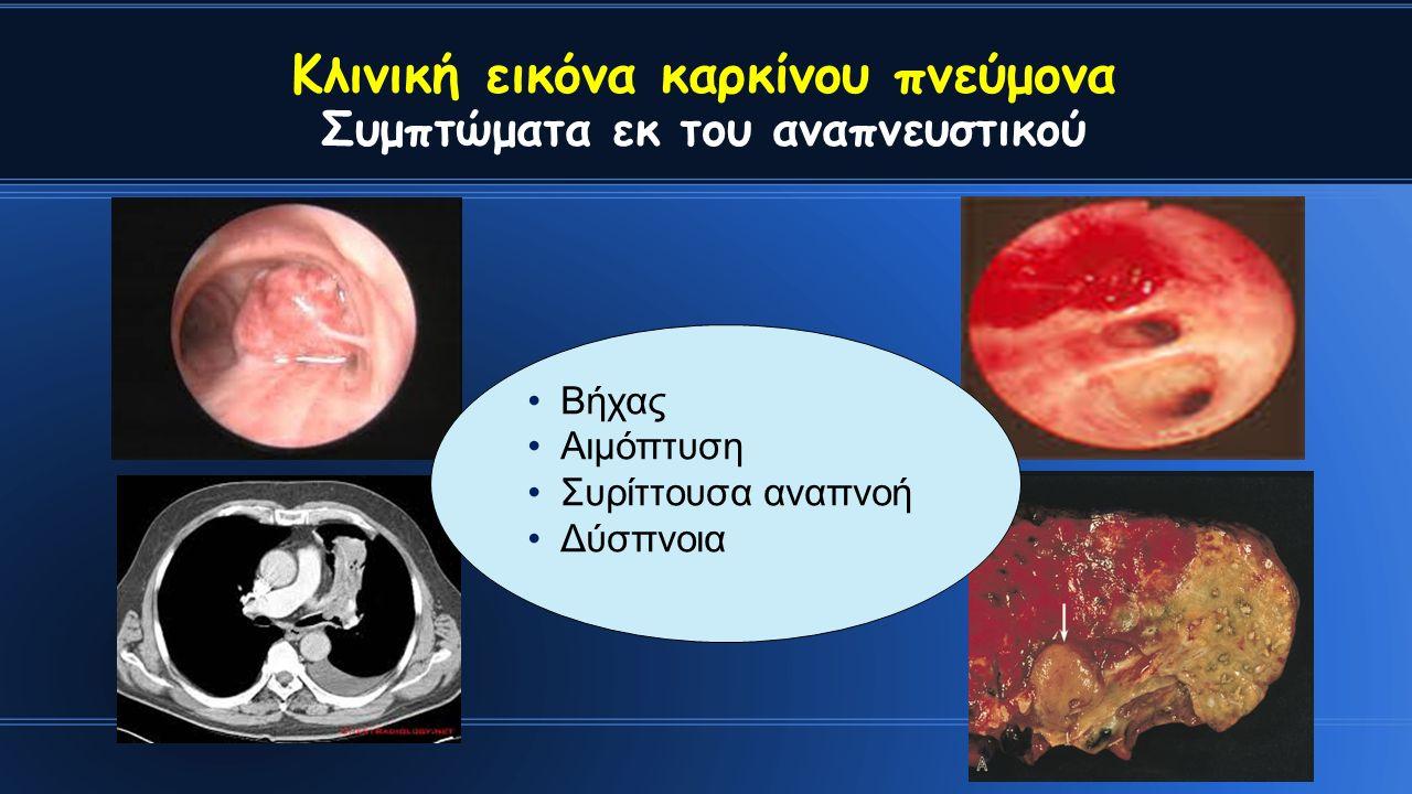 Κλινική εικόνα καρκίνου πνεύμονα Συμπτώματα εκ του αναπνευστικού Βήχας Αιμόπτυση Συρίττουσα αναπνοή Δύσπνοια