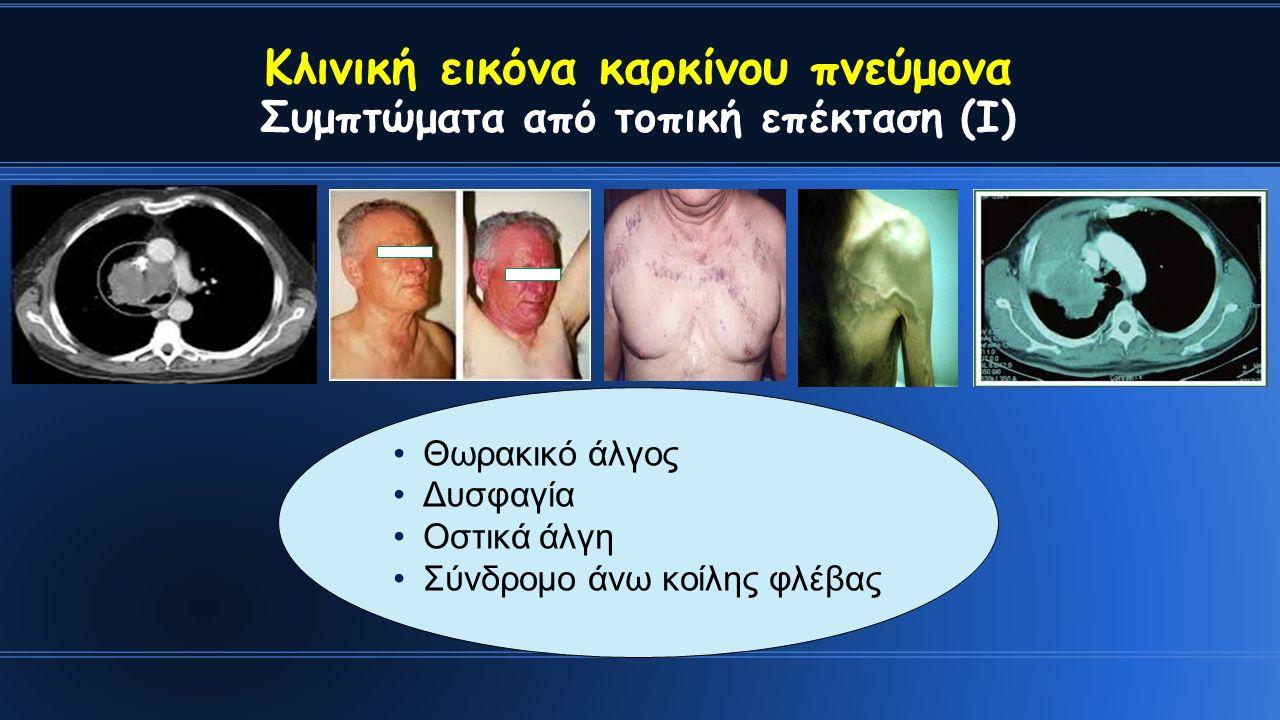 Κλινική εικόνα καρκίνου πνεύμονα Συμπτώματα από τοπική επέκταση (Ι) Θωρακικό άλγος Δυσφαγία Οστικά άλγη Σύνδρομο άνω κοίλης φλέβας