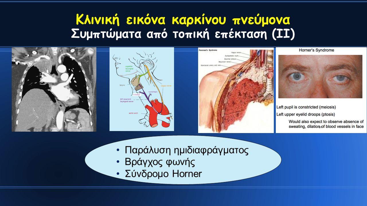 Κλινική εικόνα καρκίνου πνεύμονα Συμπτώματα από τοπική επέκταση (ΙΙ) Παράλυση ημιδιαφράγματος Βράγχος φωνής Σύνδρομο Horner