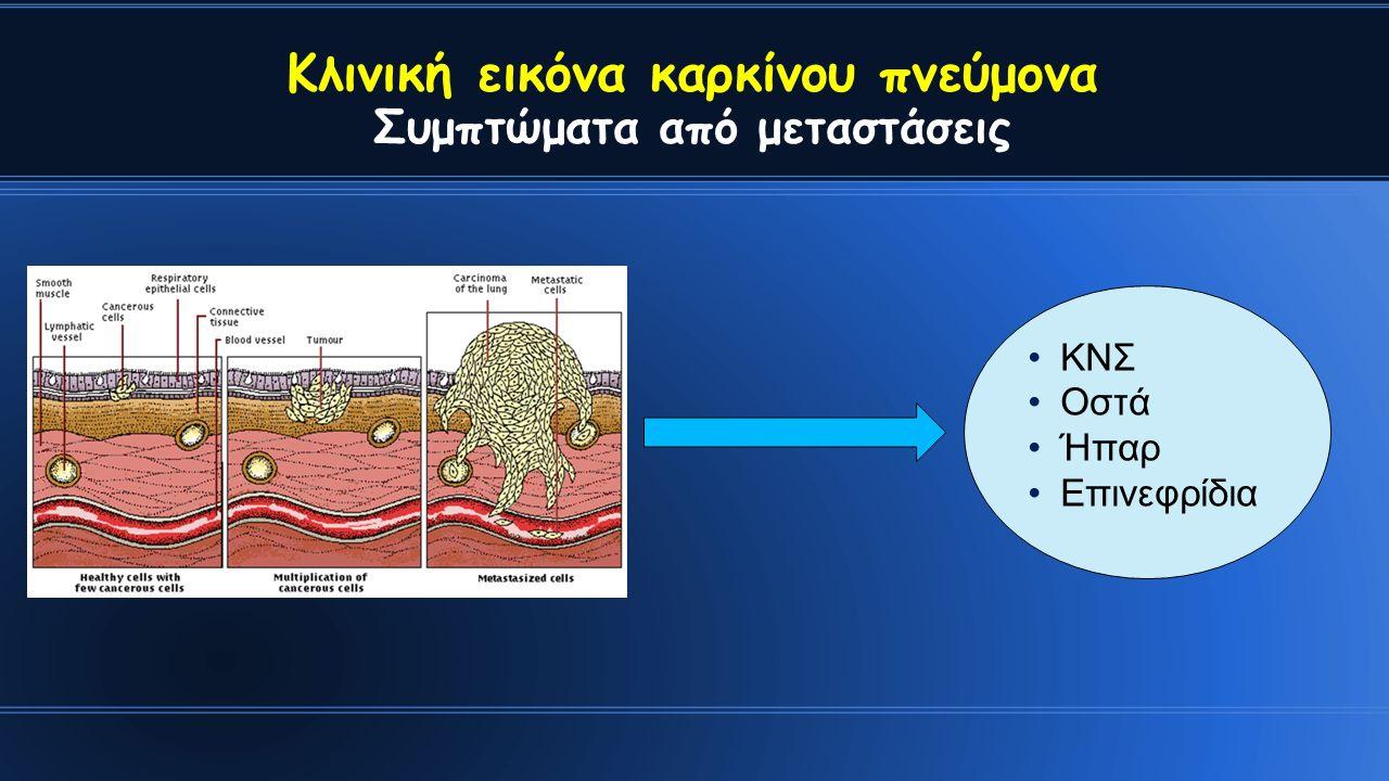 Κλινική εικόνα καρκίνου πνεύμονα Συμπτώματα από μεταστάσεις ΚΝΣ Οστά Ήπαρ Επινεφρίδια