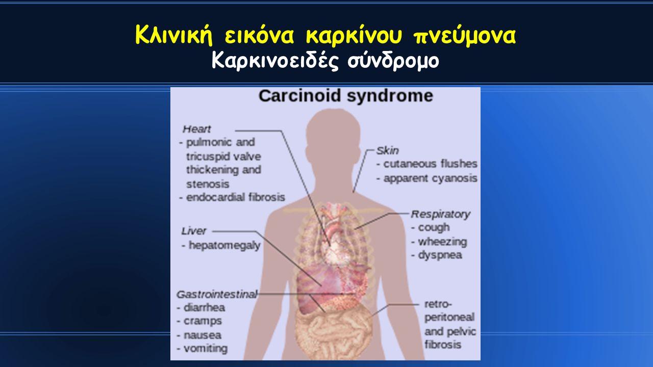 Κλινική εικόνα καρκίνου πνεύμονα Καρκινοειδές σύνδρομο