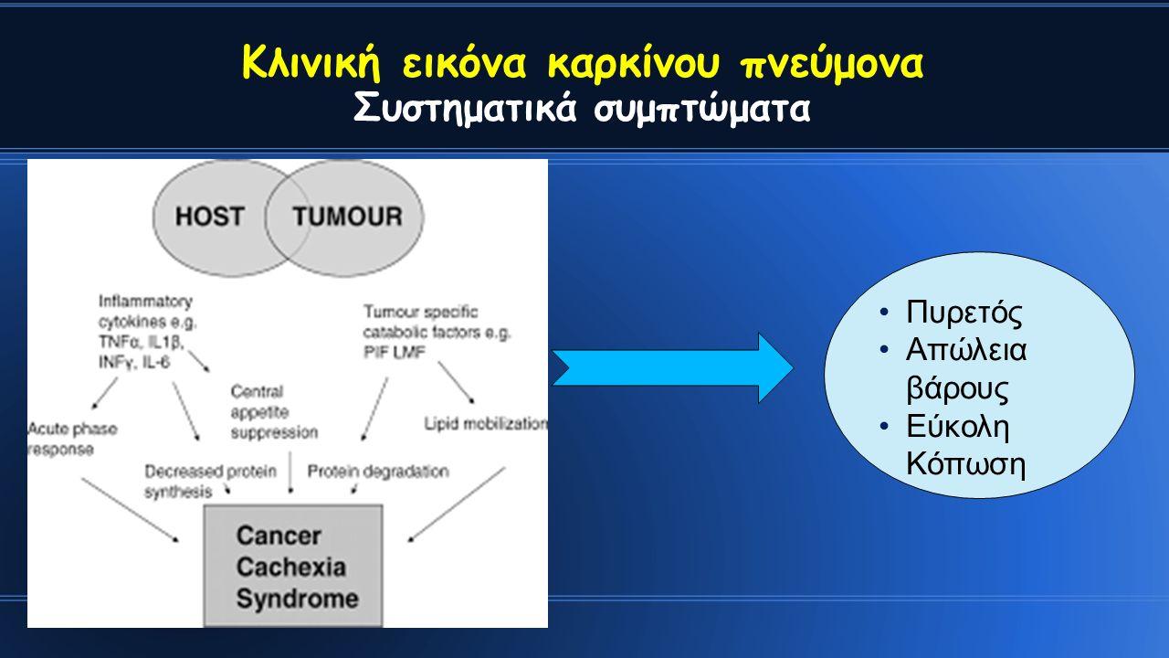 Κλινική εικόνα καρκίνου πνεύμονα Συστηματικά συμπτώματα Πυρετός Απώλεια βάρους Εύκολη Κόπωση