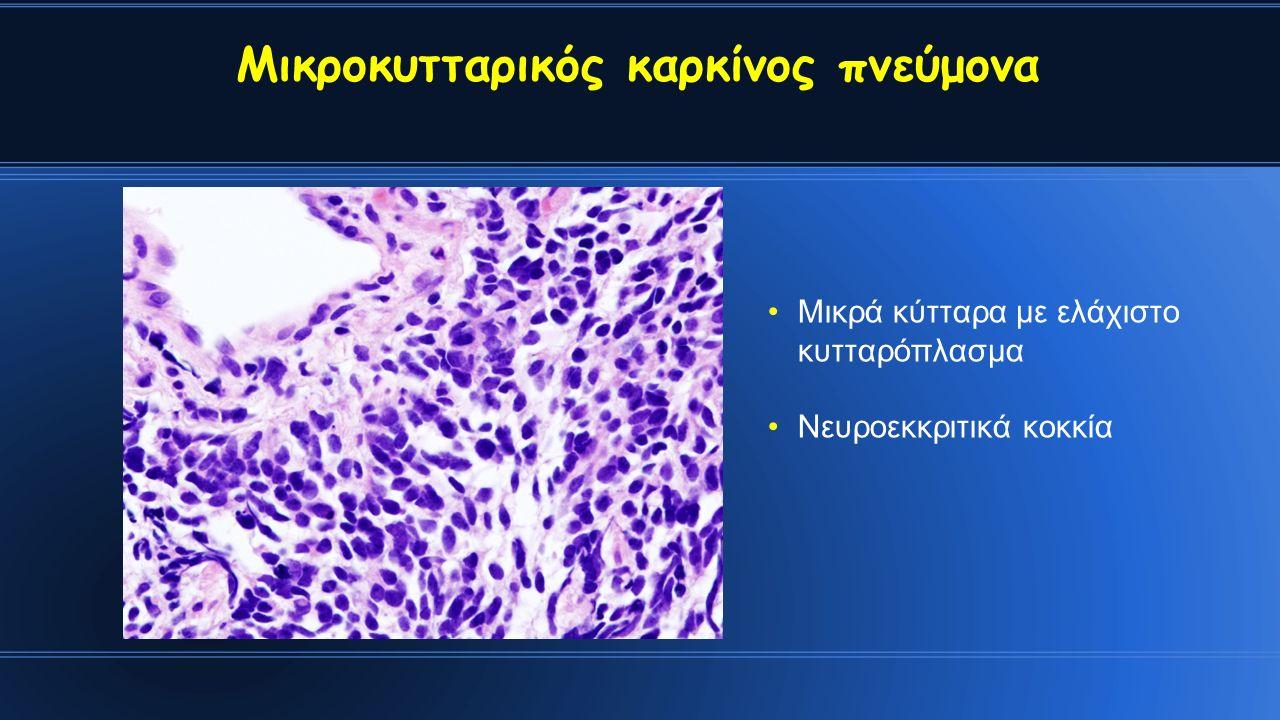 Μικροκυτταρικός καρκίνος πνεύμονα Μικρά κύτταρα με ελάχιστο κυτταρόπλασμα Νευροεκκριτικά κοκκία
