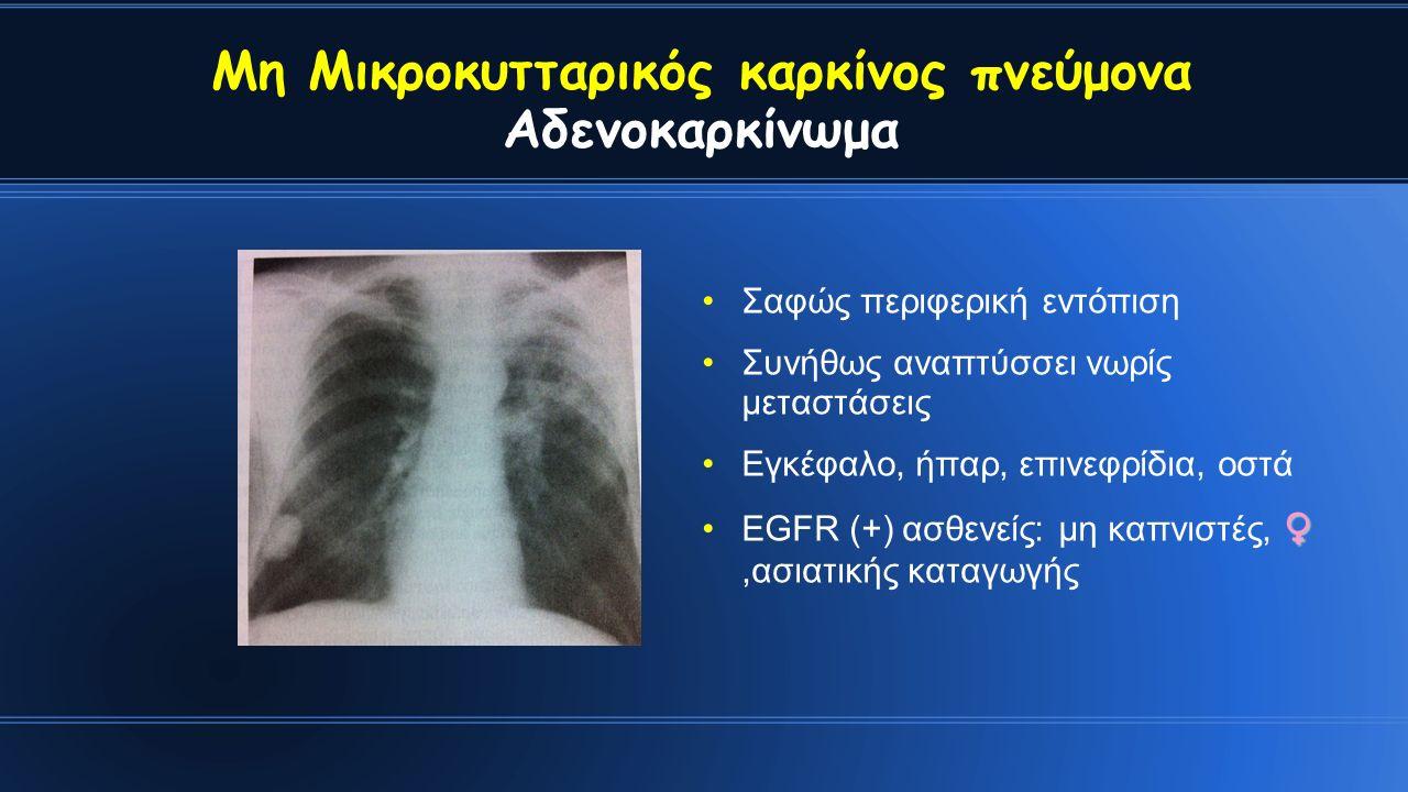 Σαφώς περιφερική εντόπιση Συνήθως αναπτύσσει νωρίς μεταστάσεις Εγκέφαλο, ήπαρ, επινεφρίδια, οστά ♀EGFR (+) ασθενείς: μη καπνιστές, ♀,ασιατικής καταγωγής Μη Μικροκυτταρικός καρκίνος πνεύμονα Αδενοκαρκίνωμα
