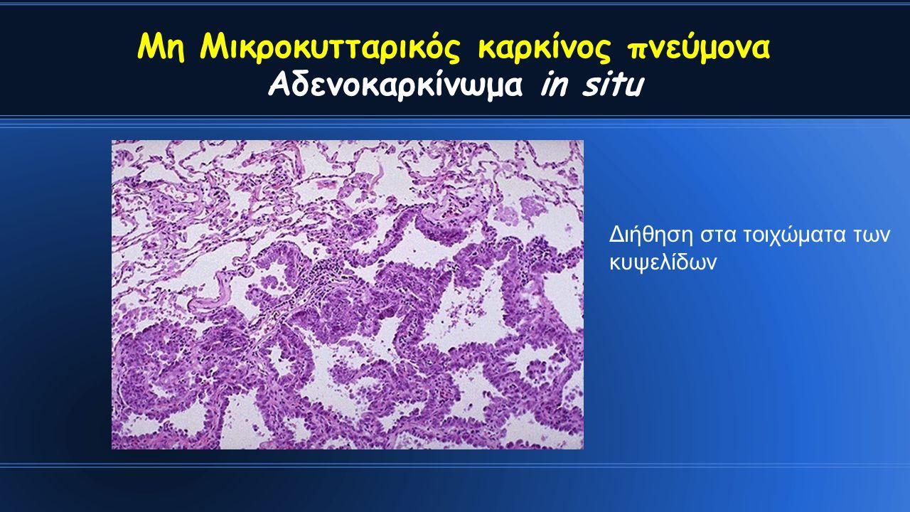 Διήθηση στα τοιχώματα των κυψελίδων Μη Μικροκυτταρικός καρκίνος πνεύμονα Αδενοκαρκίνωμα in situ
