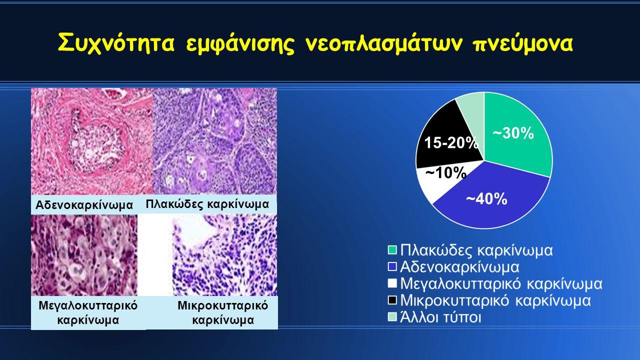 Συχνότητα εμφάνισης νεοπλασμάτων πνεύμονα ~30% 15-20% ~10% ~40% Πλακώδες καρκίνωμα Αδενοκαρκίνωμα Μεγαλοκυτταρικό καρκίνωμα Μικροκυτταρικό καρκίνωμα