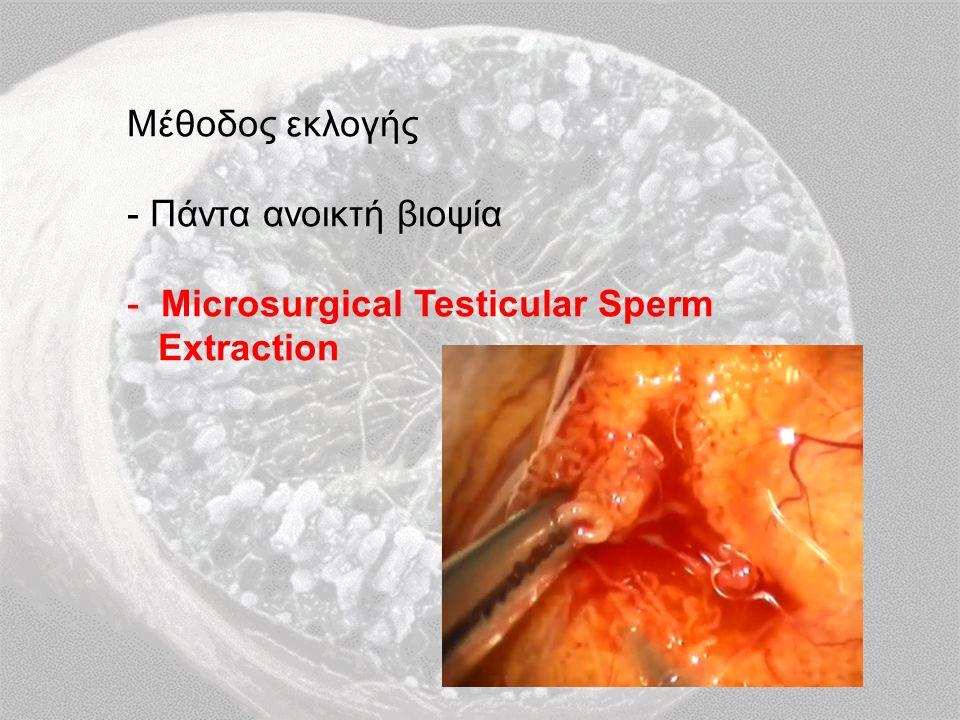 Μέθοδος εκλογής - Πάντα ανοικτή βιοψία - Microsurgical Testicular Sperm Extraction