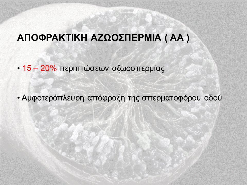 ΑΠΟΦΡΑΚΤΙΚΗ ΑΖΩΟΣΠΕΡΜΙΑ ( ΑΑ ) 15 – 20% περιπτώσεων αζωοσπερμίας Αμφοτερόπλευρη απόφραξη της σπερματοφόρου οδού