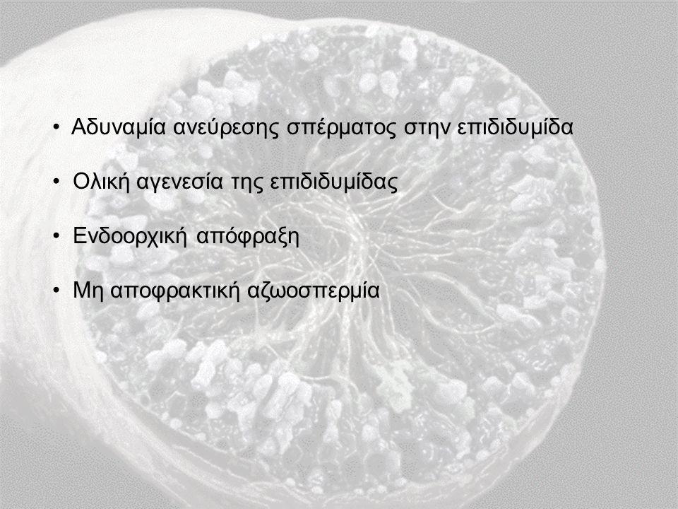 Αδυναμία ανεύρεσης σπέρματος στην επιδιδυμίδα Ολική αγενεσία της επιδιδυμίδας Ενδοορχική απόφραξη Μη αποφρακτική αζωοσπερμία