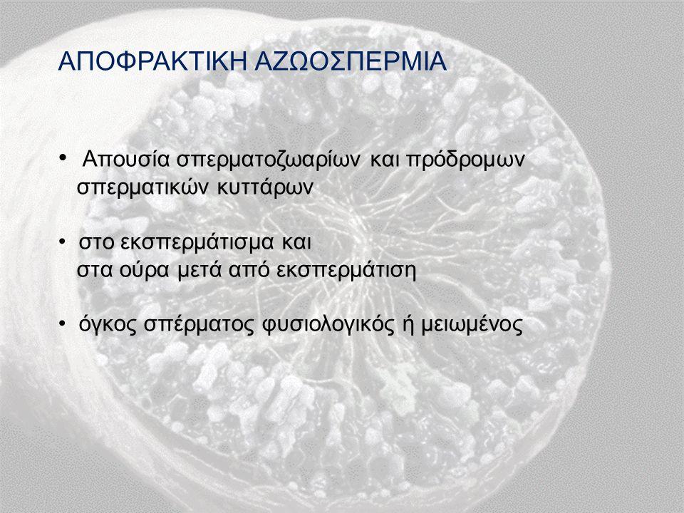 ΑΠΟΦΡΑΚΤΙΚΗ ΑΖΩΟΣΠΕΡΜΙΑ Απουσία σπερματοζωαρίων και πρόδρομων σπερματικών κυττάρων στο εκσπερμάτισμα και στα ούρα μετά από εκσπερμάτιση όγκος σπέρματος φυσιολογικός ή μειωμένος