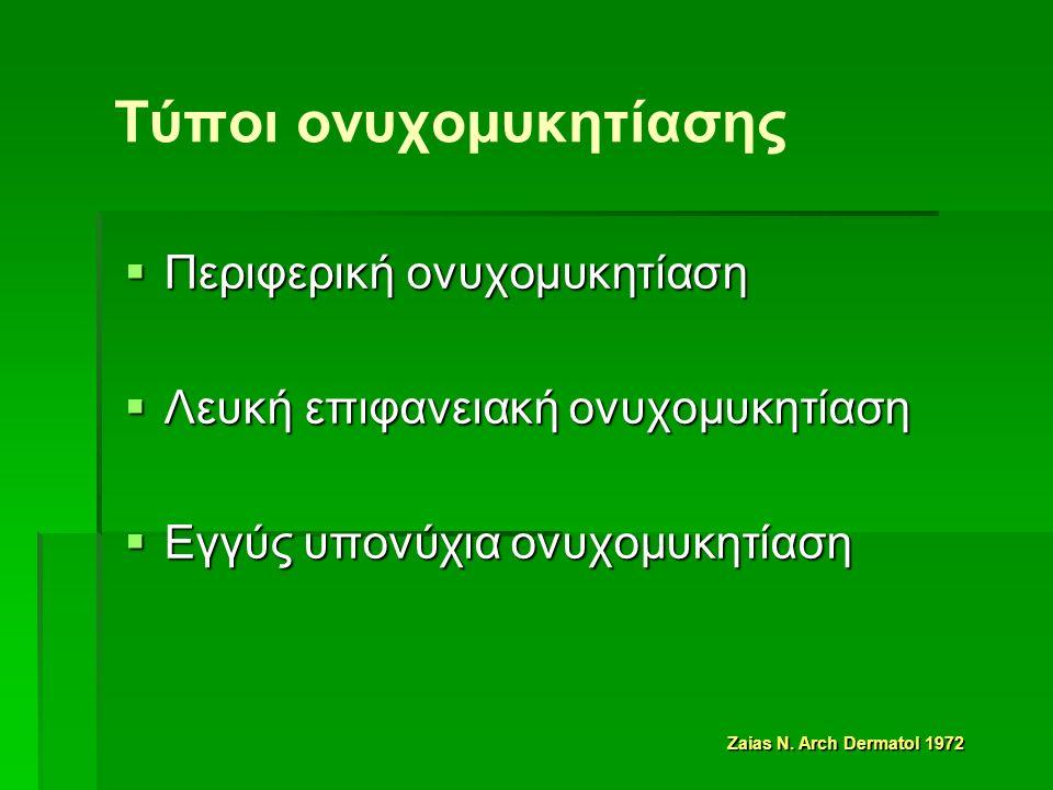 Τύποι ονυχομυκητίασης  Περιφερική ονυχομυκητίαση  Λευκή επιφανειακή ονυχομυκητίαση  Εγγύς υπονύχια ονυχομυκητίαση Zaias N.