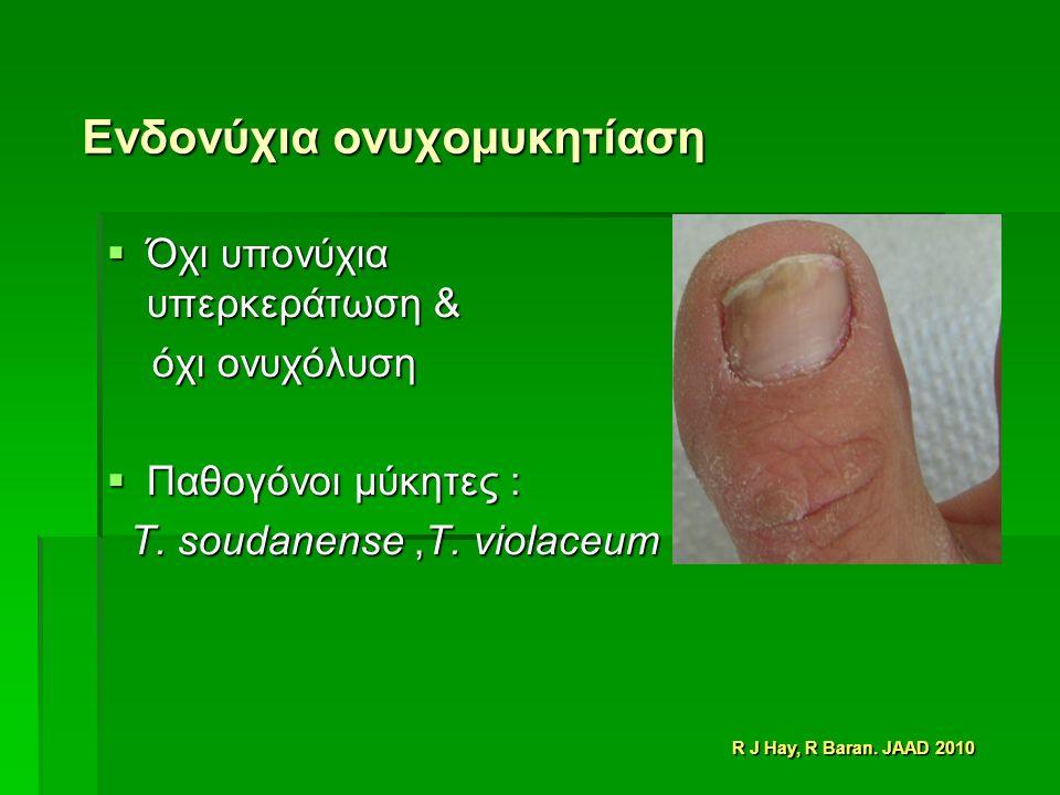Ενδονύχια ονυχομυκητίαση  Όχι υπονύχια υπερκεράτωση & όχι ονυχόλυση όχι ονυχόλυση  Παθογόνοι μύκητες : T.