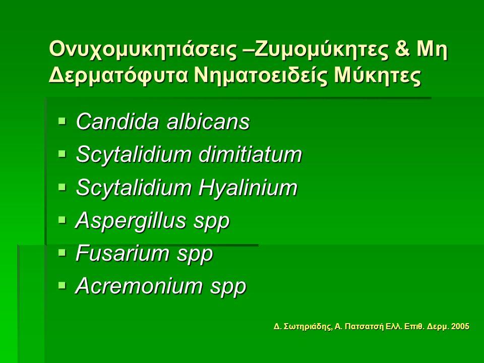  Candida albicans  Scytalidium dimitiatum  Scytalidium Hyalinium  Aspergillus spp  Fusarium spp  Acremonium spp Ονυχομυκητιάσεις –Ζυμομύκητες & Μη Δερματόφυτα Νηματοειδείς Μύκητες Δ.